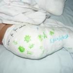 บทความ25 โรคเท้าปุกในเด็กแรกเกิด (ตอนที่2ขั้นตอนรักษาคร่าวๆ)